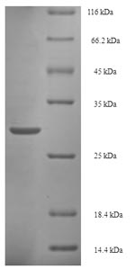 SDS-PAGE- Recombinant protein Salmonella iagB