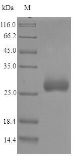 SDS-PAGE- Recombinant protein Chlamydia OmcA