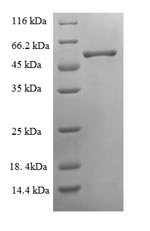 SDS-PAGE- Recombinant protein Chicken OIH
