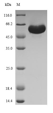 SDS-PAGE - Recombinant Spinacia oleracea Ribulose bisphosphate carboxylase