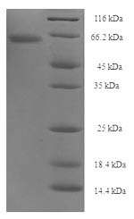 SDS-PAGE- Recombinant protein Clostridium botA