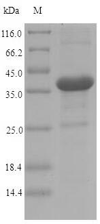 SDS-PAGE - Recombinant Yersinia enterocolitica Invasin