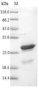 SDS-PAGE- Recombinant protein Vaccinia K3L