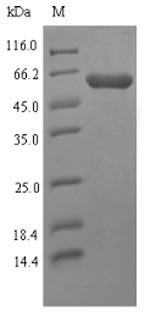 SDS-PAGE- Recombinant protein Mycoplasma p37
