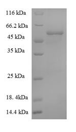 SDS-PAGE- Recombinant protein African AC1