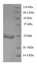 SDS-PAGE - Recombinant Ustilago maydis P6 virus KP6 killer toxin