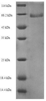 SDS-PAGE- Recombinant protein Gardnerella GV51_0914