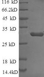 SDS-PAGE- Recombinant protein Escherichia bla