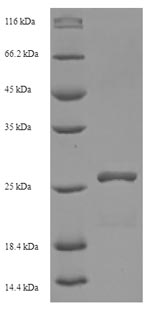 SDS-PAGE- Recombinant protein Human HLA-DMA