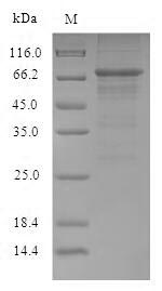 SDS-PAGE- Recombinant protein Influenza NP