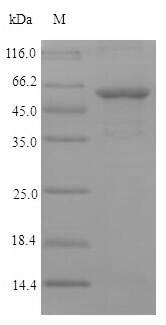 SDS-PAGE- Recombinant protein Chlamydia ompA