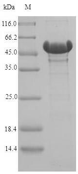SDS-PAGE- Recombinant protein Acinetobacter catA