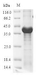 SDS-PAGE- Recombinant protein Escherichia lpxC