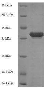 SDS-PAGE- Recombinant protein Escherichia recR