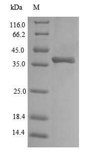 SDS-PAGE- Recombinant protein Escherichia ompA