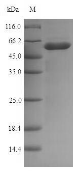 SDS-PAGE- Recombinant protein Escherichia nlpD