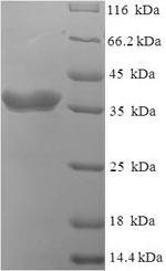 SDS-PAGE- Recombinant protein Escherichia lptC