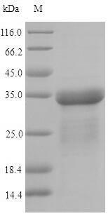 SDS-PAGE- Recombinant protein Escherichia fimA