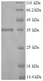 SDS-PAGE- Recombinant protein Human IFNA1