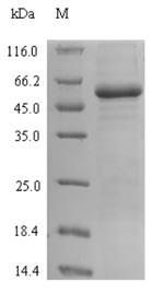 SDS-PAGE- Recombinant protein Escherichia lacI