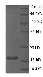 SDS-PAGE- Recombinant protein Human E6