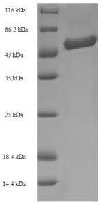 SDS-PAGE- Recombinant protein Bradyrhizobium amiF