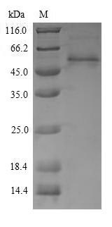 SDS-PAGE- Recombinant protein Penaeus AK