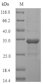 SDS-PAGE- Recombinant protein Marmota TNF