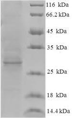 SDS-PAGE- Recombinant protein Hepatitis ORF3
