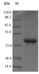 SDS-PAGE- Recombinant protein Human MED1