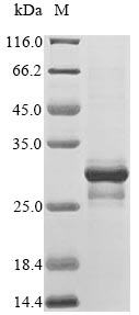 SDS-PAGE- Recombinant protein Human MLANA