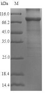 SDS-PAGE- Recombinant protein Human AKAP4