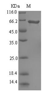 SDS-PAGE- Recombinant protein Pseudomonas pvdA