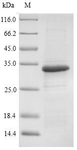 SDS-PAGE- Recombinant protein Rickettsia omp