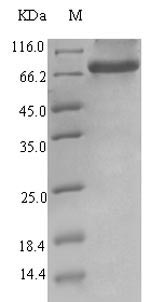 SDS-PAGE- Recombinant protein Human ERVK-6