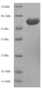 SDS-PAGE- Recombinant protein Mouse Ogdh