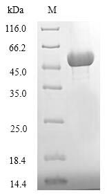 SDS-PAGE- Recombinant protein Candida ATG1