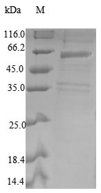 SDS-PAGE- Recombinant protein Human COPS2