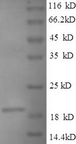 SDS-PAGE- Recombinant protein Bacillus ssb