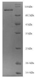 SDS-PAGE- Recombinant protein Mouse Osbpl11