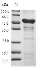 SDS-PAGE- Recombinant protein Human ABHD5