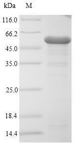 SDS-PAGE- Recombinant protein Escherichia ompC