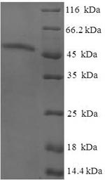 SDS-PAGE- Recombinant protein Human AKTIP