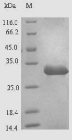 SDS-PAGE- Recombinant protein Hepatitis X