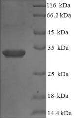 SDS-PAGE- Recombinant protein Human IL36RN