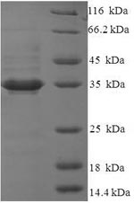SDS-PAGE- Recombinant protein Human QPCTL