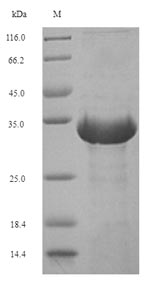 SDS-PAGE- Recombinant protein Euroglyphus EURM2