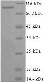 SDS-PAGE- Recombinant protein Human XPNPEP1