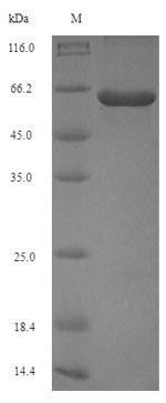 SDS-PAGE- Recombinant protein Porphyromonas PG_1424