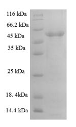 SDS-PAGE- Recombinant protein Human ADAMTS7